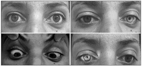 Синдром Аргайла-Робертсона