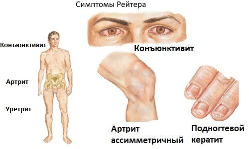 Синдром Рейтера