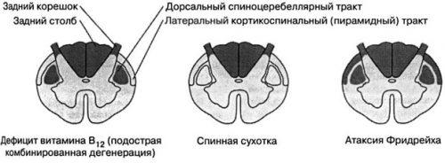 Болезни спинного мозга