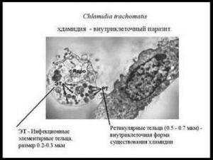 Chlamydia trachomatis: симптомы, лечение, диагностика