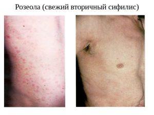 Свежий вторичный сифилис