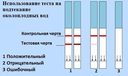 Тест на подтекание околоплодных вод