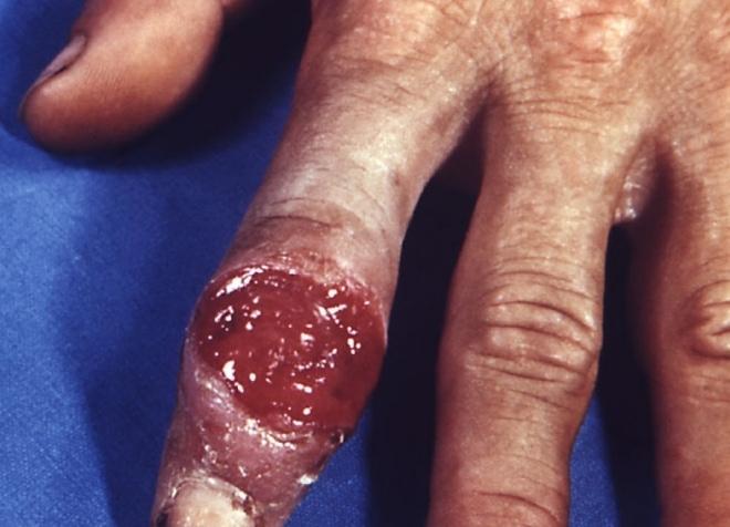 сифилис на пальце руки