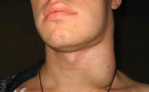 Увеличение шейных лимфоузлов