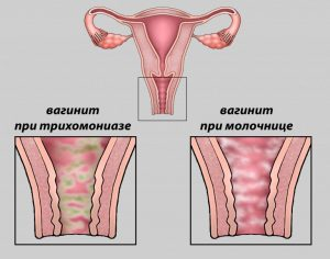 Виды вагинита