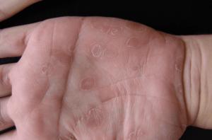 Вторичный сифилис на руках