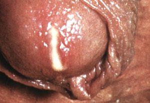 Выделения из уретры при хроническом уретрите