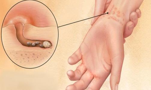 Чесотка на руках: особенности проявления, лечение, диагностика