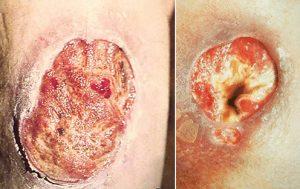 Язвы при третичном сифилисе