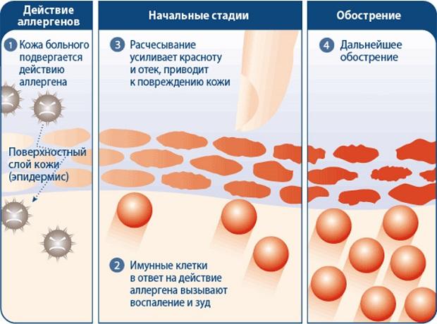 Действие аллергенов кожу