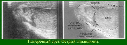 Фото острого эпидидимита