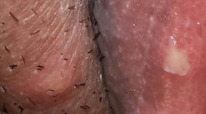 Гонококковый вагинит