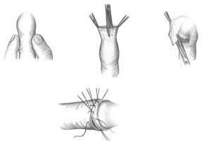 Хирургическое лечение фимоза