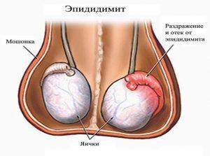 Левосторонний эпидидимит