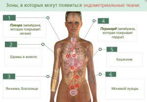 Локализация болезни