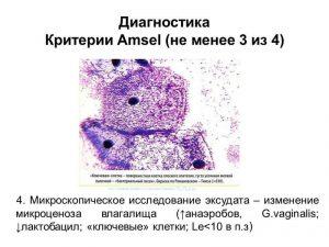 Метод Амселя
