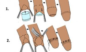 Методы обрезания