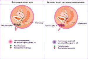 Нарушение микрофлоры