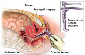 Осмотр с помощью гинекологического зеркала