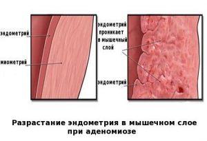 Разрастание эндометрия