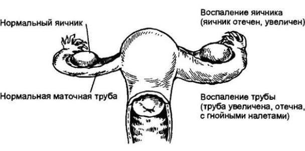Схема аднексита