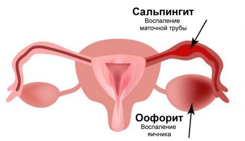 Схема сальпингоофорита