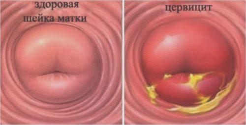 Воспаление шейки матки