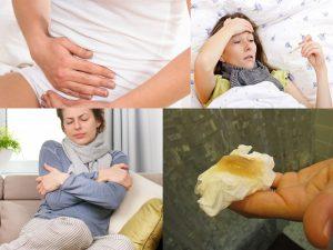 Симптомы подострого аднексита