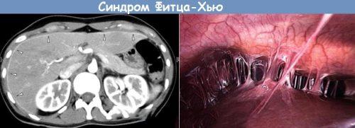 Синдром Фитца-Хью