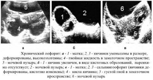 Снимки при хроническом оофорите