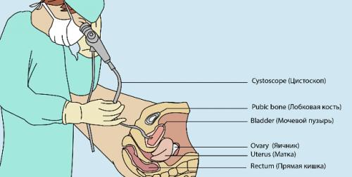 Цистография мочевого пузыря