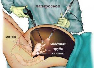 Удаление лапароскопическим методом