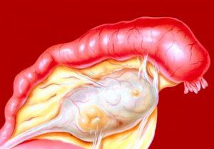 Воспаление при сальпингоофорите