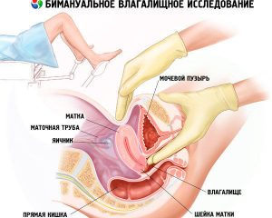 Бимануальное гинекологическое обследование