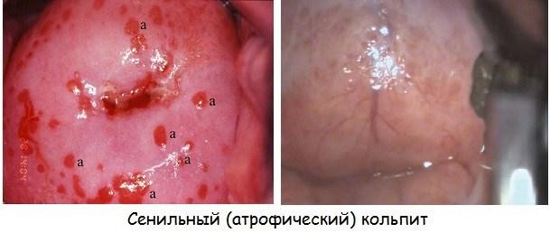 Диагностика сенильного кольпита