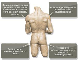 Этиология и патогенез простатита