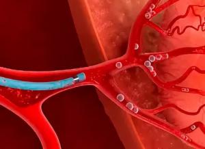 Катетеризация артерий