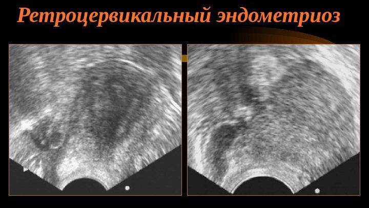 Ретроцервикальный эндометриоз на УЗИ
