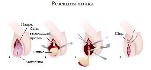 Резекция яичка
