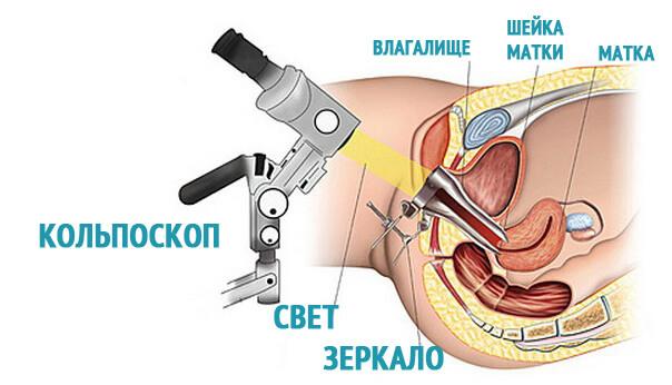Схема кольпоскопии