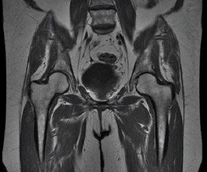 Заболевания органов малого таза