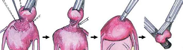 Лапароскопия миомы матки