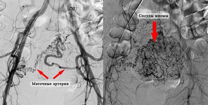 Маточные артерии и сосуды миомы