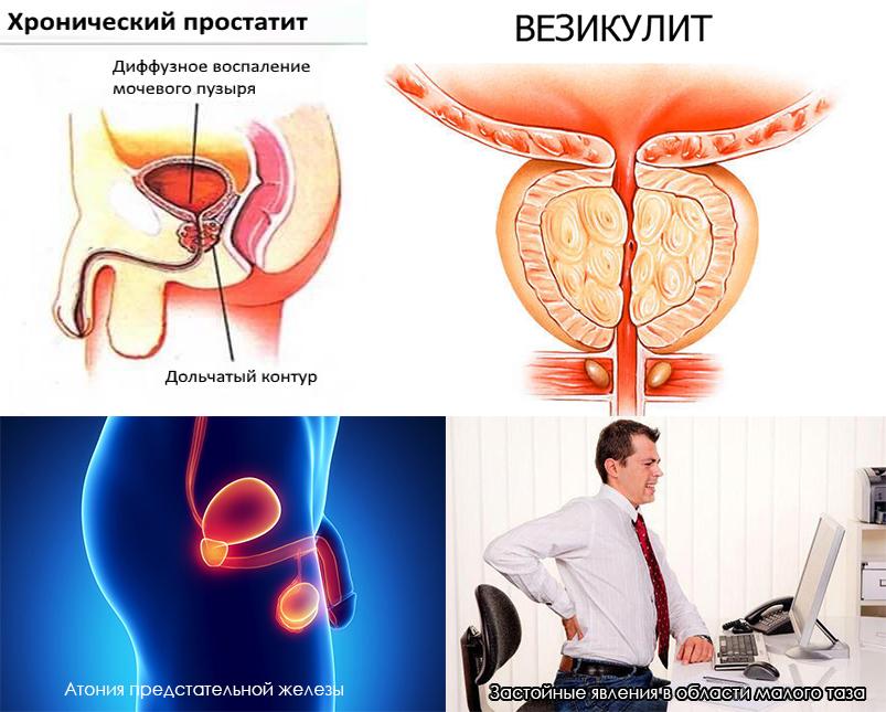 простатита везикулита