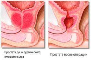 Простата после операции