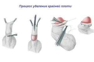 Процедура циркумцизии