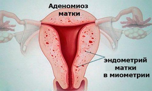 Схема аденомиоза