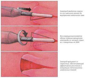 Схема процедуры радиоволнового лечения