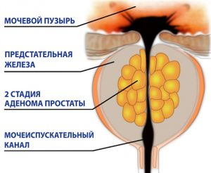 Стадии аденомы