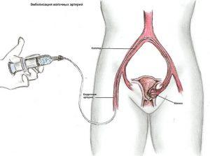Суть эмболизации артерий маточной полости